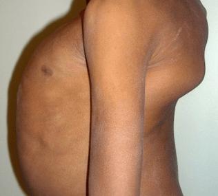 Spinal deformities – Causes and remedies